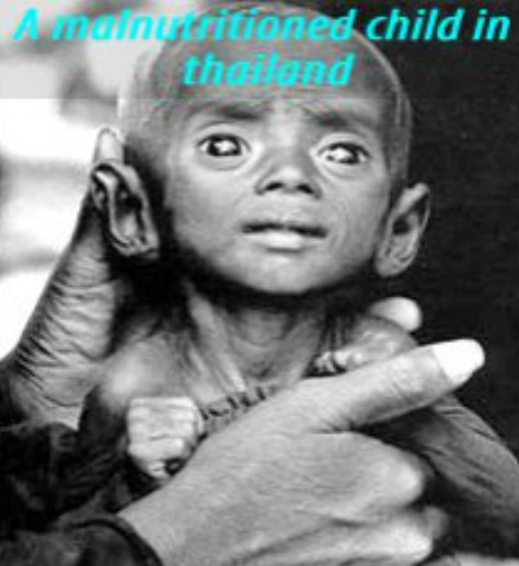 maze-of-lost-souls-malnutritioned-child-in-thailand